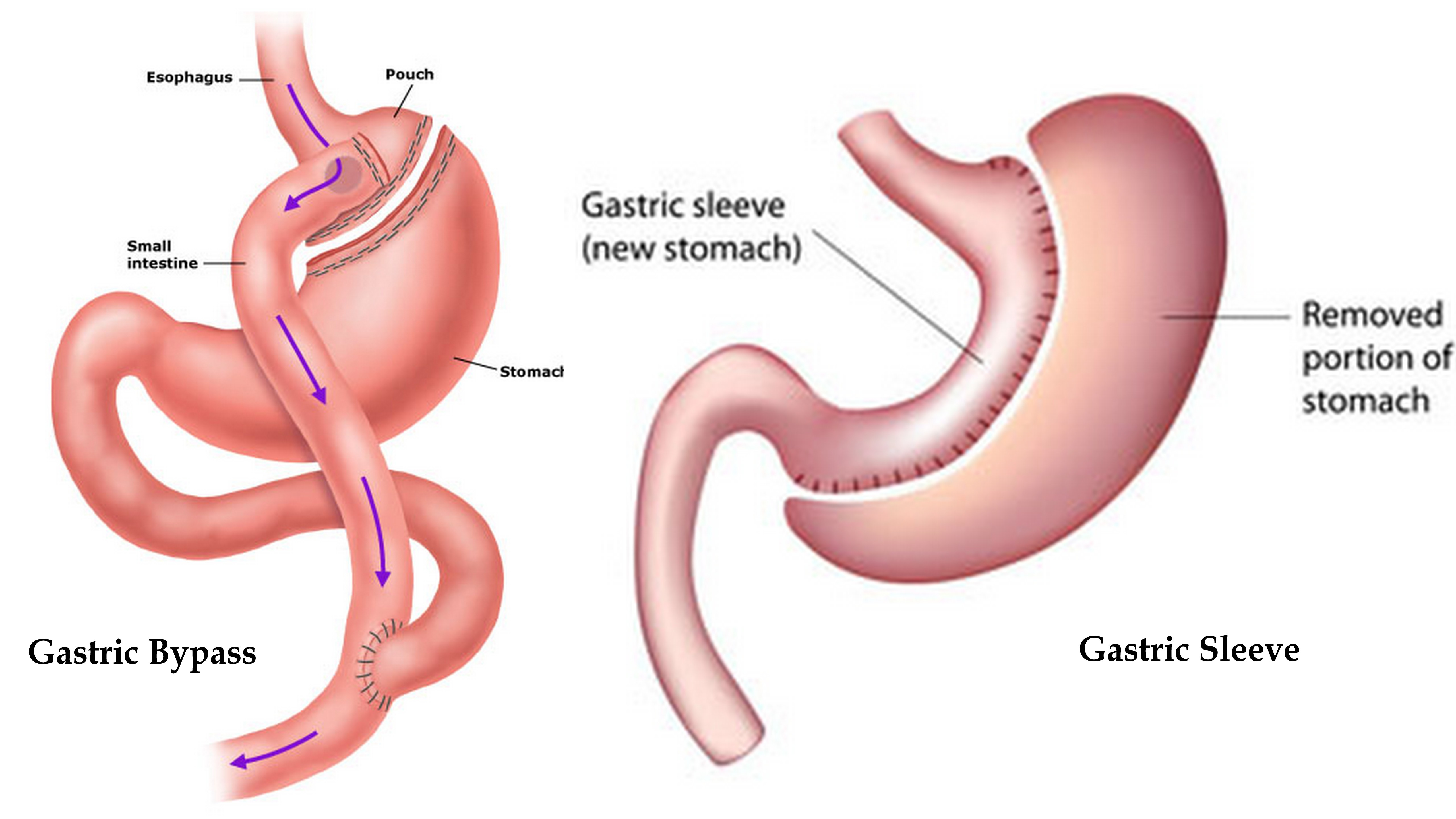 Gastric Bypass: Is it REALLY the easy way out?* - Elite Fitness